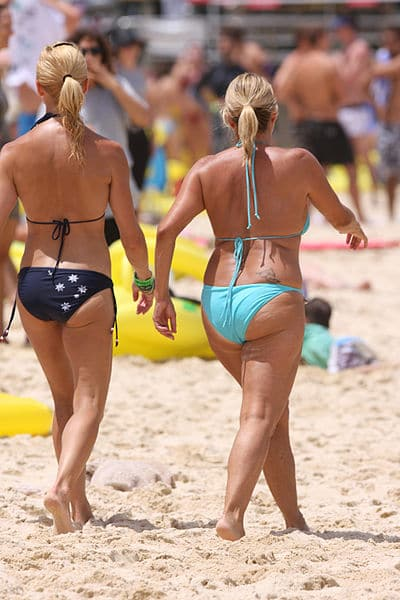 Two women with cellulite on their legs