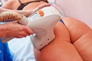 velasmooth procedure for women hip for cellulite and fat