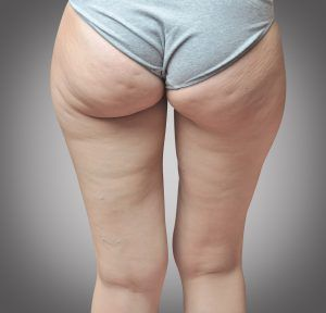 Cellulite at woman buttocks.