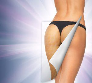 Smoothshapes Cellulite Treatment Review – Does Smoothshapes Work?