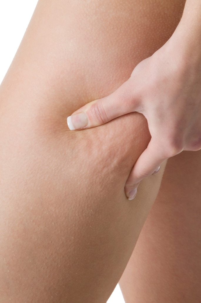 A woman showing cellulite on her leg