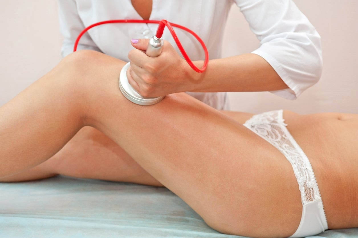 A woman during cellulite treatment