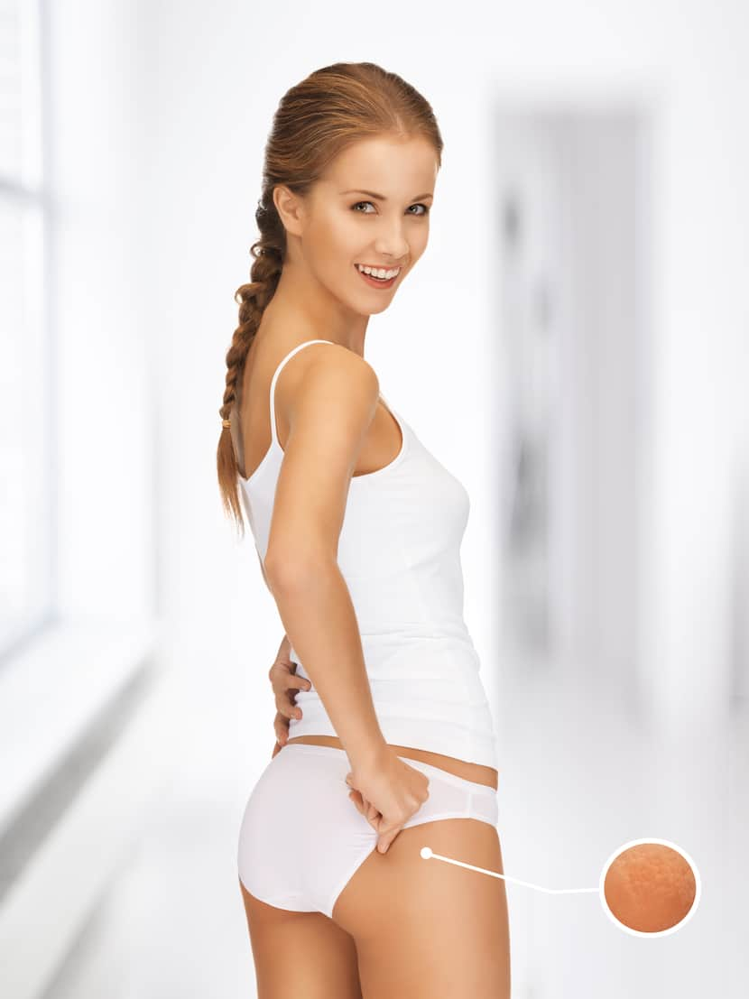 picture of woman with magnifier showing cellulite