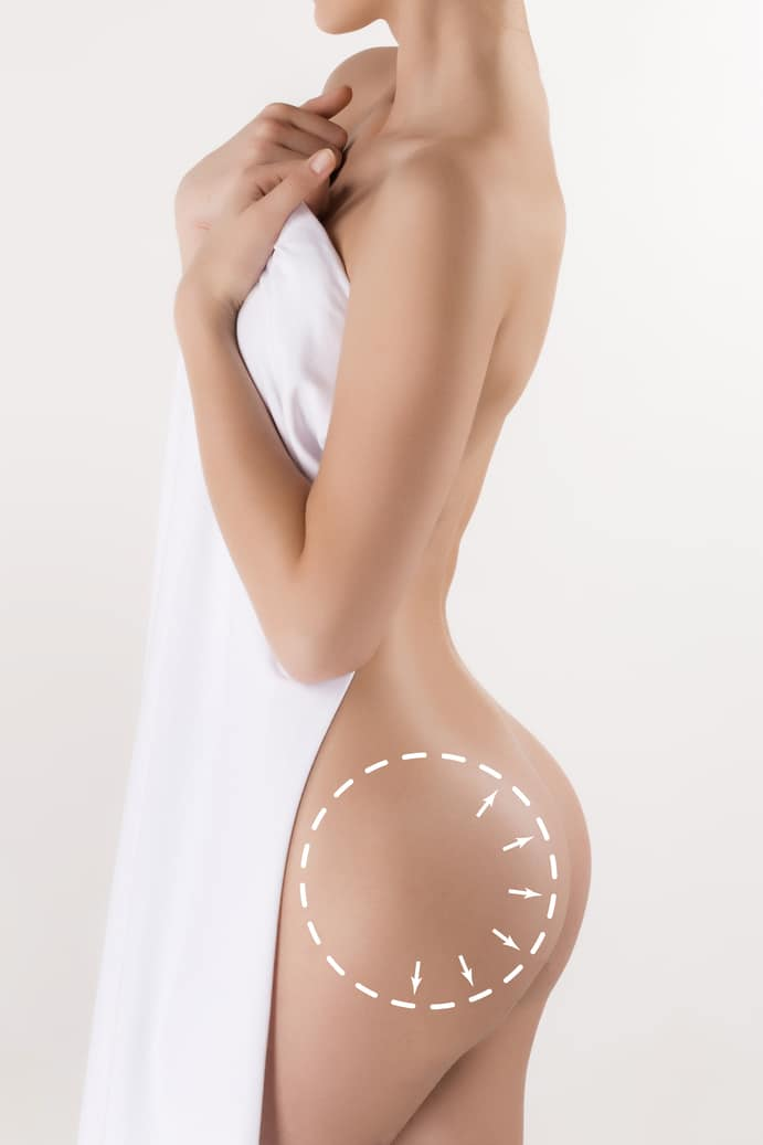 Woman's body with the drawing arrows. Plastic surgery, healthy nutrition, liposuction, sport and cellulite removal.