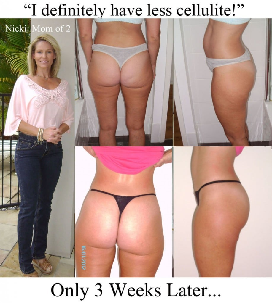Nicki's proof of cellulite reduction after 3 weeks