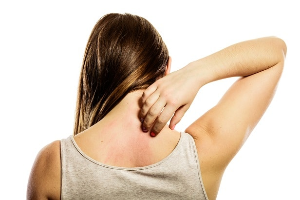 Young woman scratching her itchy back with hives