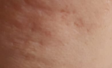Laser Treatment for Acne Scars! Is It Effective?