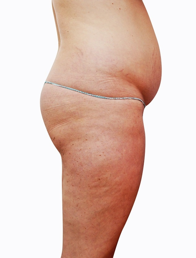 Unwell women with cellulite