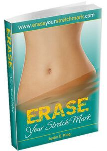 erase stretch marks at home